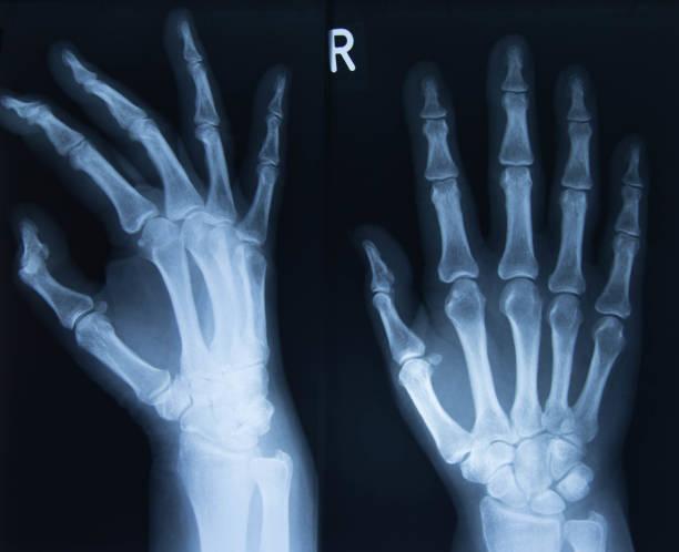 xray of both hands stock photo