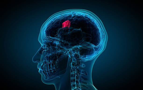 x-ray of brain showing tumor stock photo