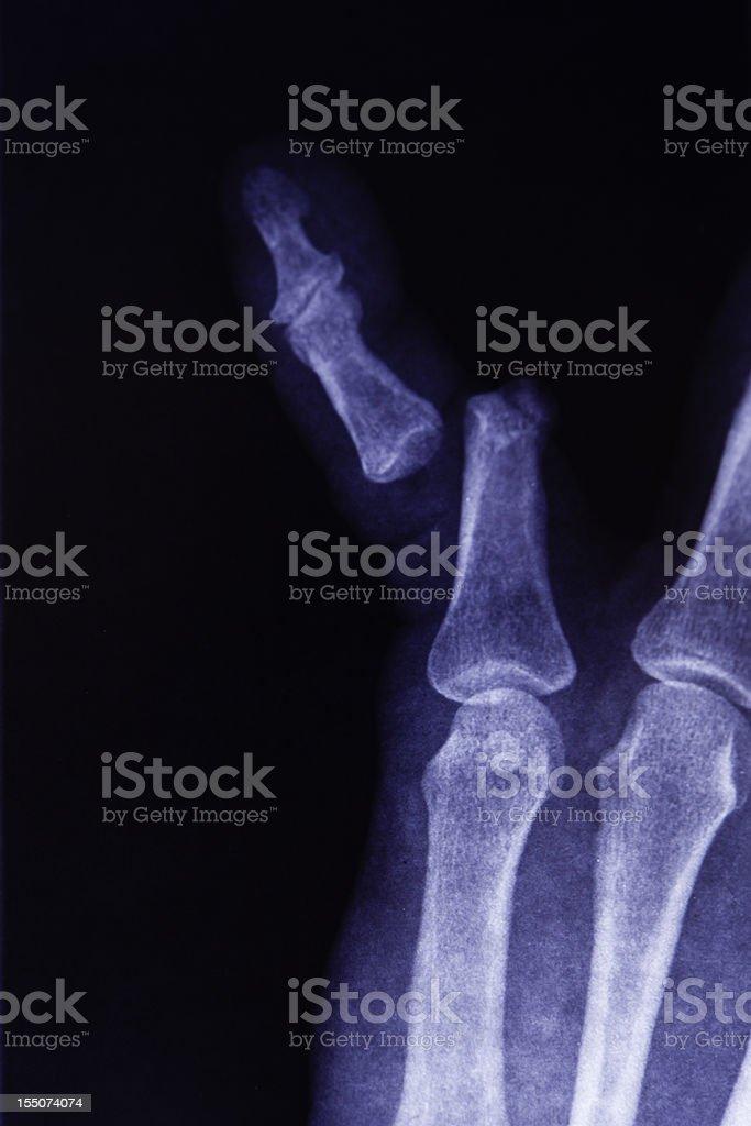 X-Ray of Broken Finger Bone royalty-free stock photo