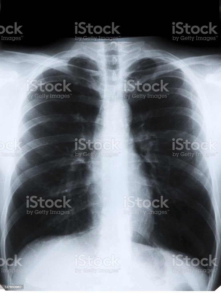 X-ray of chest royalty-free stock photo