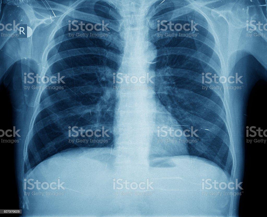 Xray Of Brust Stock-Fotografie und mehr Bilder von Anatomie   iStock