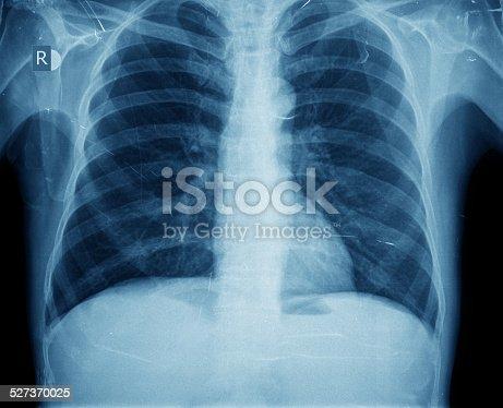 871683804istockphoto X-ray of chest 527370025