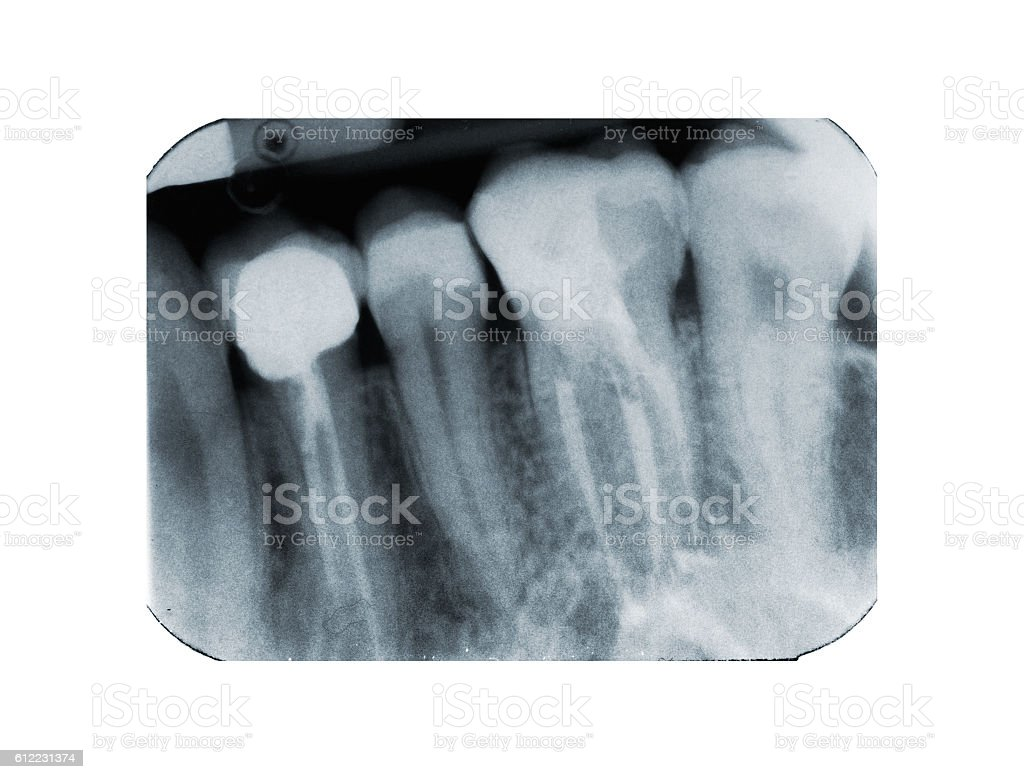 Fotografía de Xray Of Dental Filling And Devitalization y más banco ...