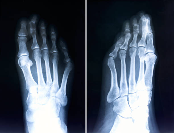 x-ray of foot fingers.radiography with deformed toes.hallux valgus - disfigure stock pictures, royalty-free photos & images