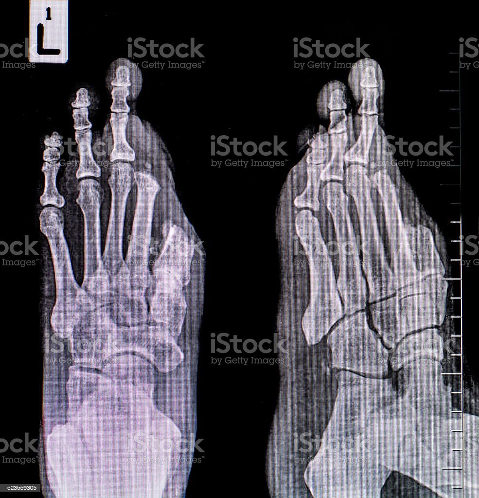 x-ray of foot stock photo