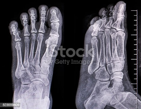 istock x-ray of foot 523559809