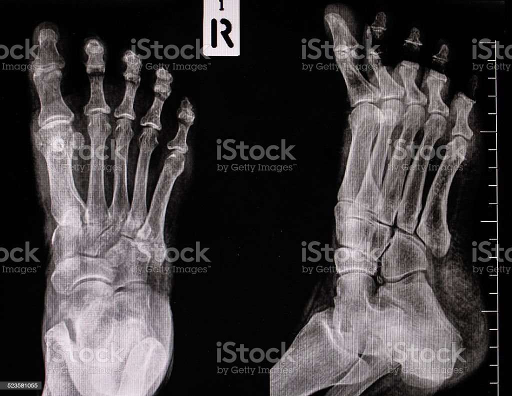 Xray Of Foot Stock Photo & More Pictures of Anatomy | iStock