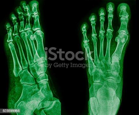 istock x-ray of foot 523599955