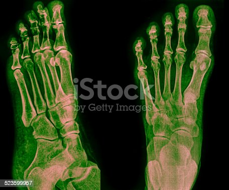 istock x-ray of foot 523599957