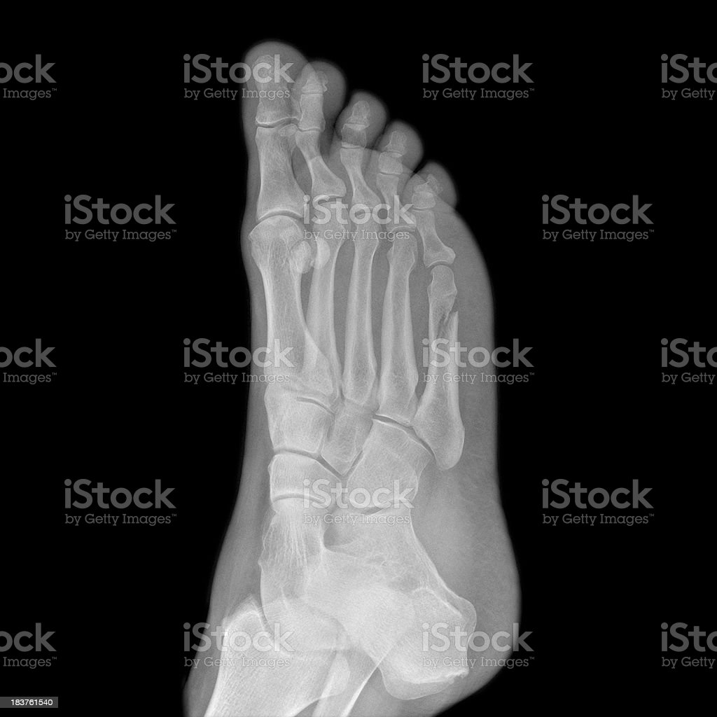 Xray Of Footballers Foot With Fractured Fifth Metatarsal Stock Photo ...