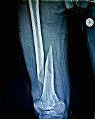 istock X-Ray of fracture right thigh in 50 year old male 1280695544