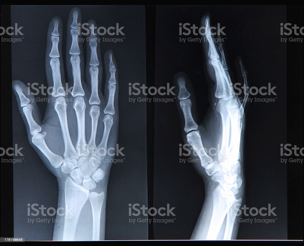 Xray of Hand/ fingers royalty-free stock photo