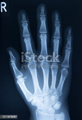 xray image of hand AP view isolated on black background for diagnostic rheumatoid.