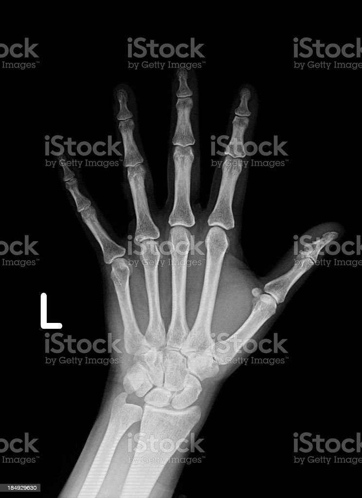Xray Of Hand Stock Photo & More Pictures of Adult | iStock