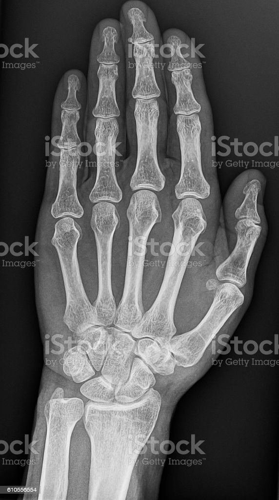 Xray Of Hand Stock Photo & More Pictures of Anatomy | iStock