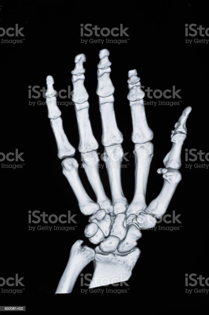 Xray Of Hand Stock Photo More Pictures Of Anatomy Istock