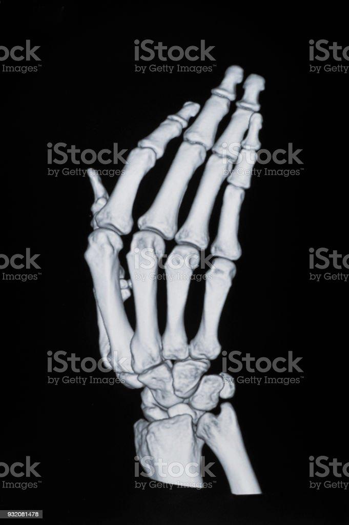 Xray De Mano - Fotografía de stock y más imágenes de Anatomía   iStock