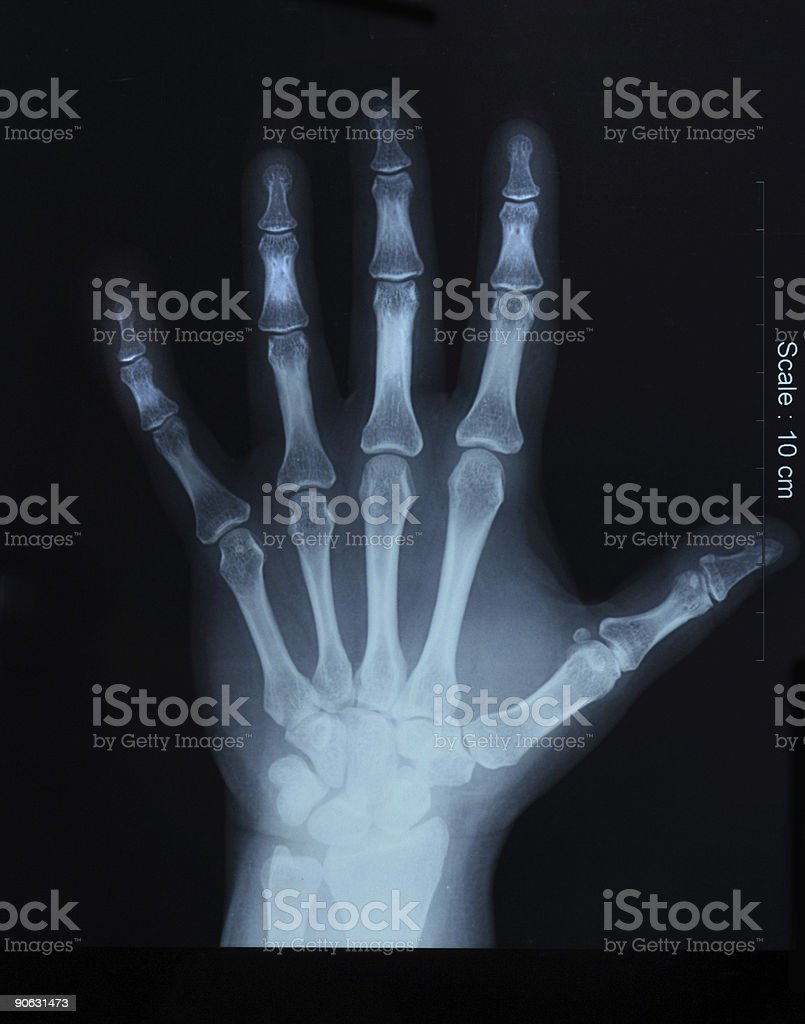 x-ray of hand; top view royalty-free stock photo