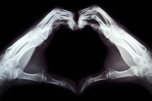 x-ray of hand in herzform - skelett hand stock-fotos und bilder