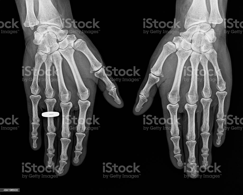 X-ray of hands stock photo