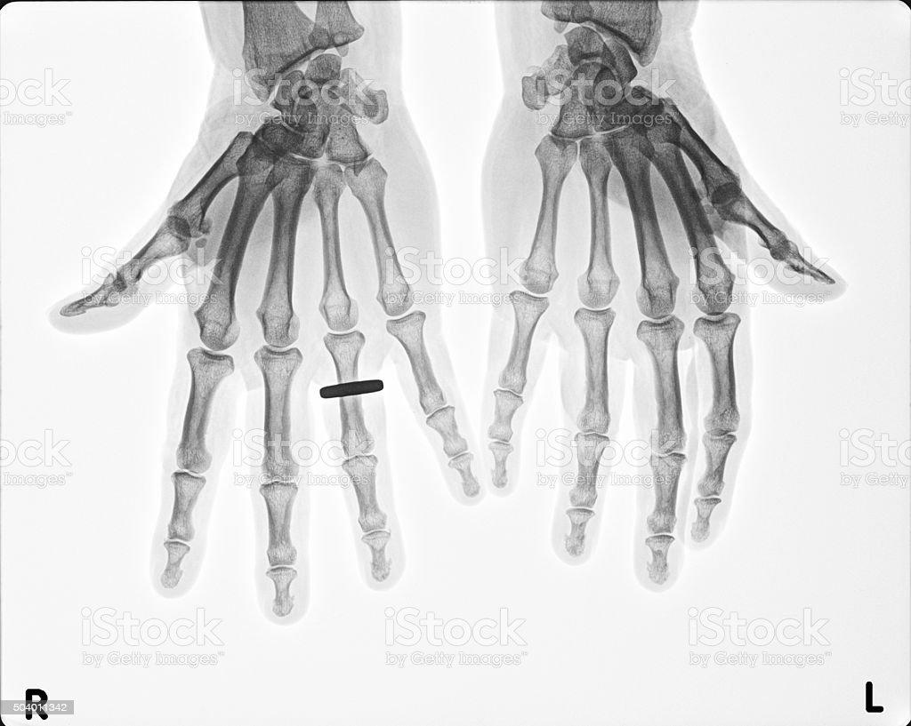 Wunderbar Handgelenk Anatomie X Ray Bilder - Menschliche Anatomie ...