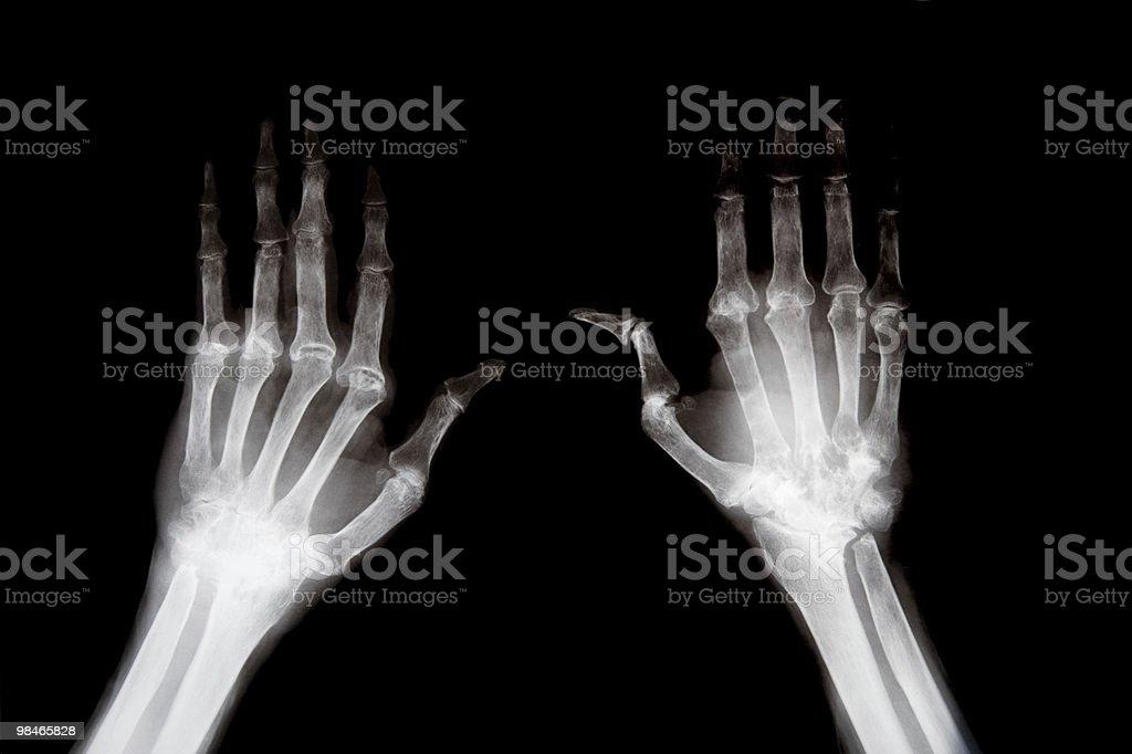 Radiografia di mano foto stock royalty-free