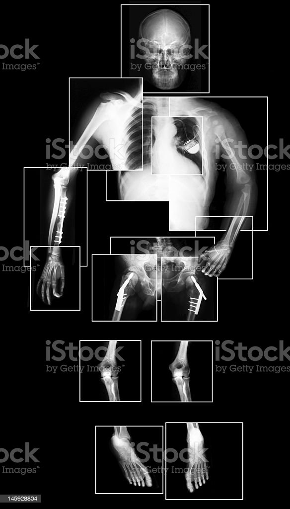 X-ray of human body stock photo