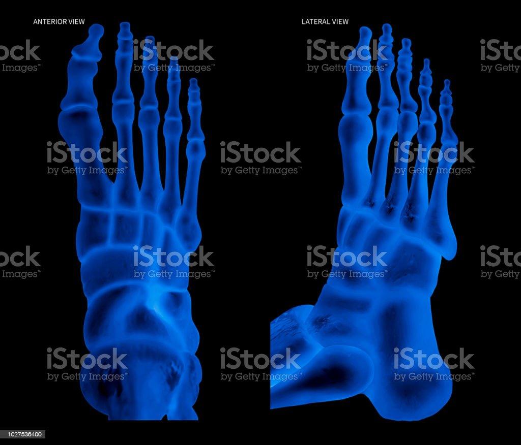 Röntgenaufnahme Des Menschlichen Fußes Knochen Ansicht Von Ventral ...