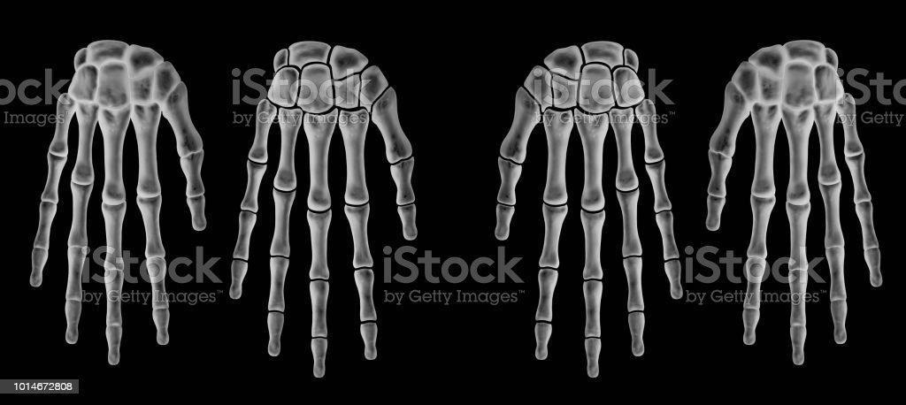 Fotografía de Radiografía Del Hueso De La Mano Humana Con Hueso ...