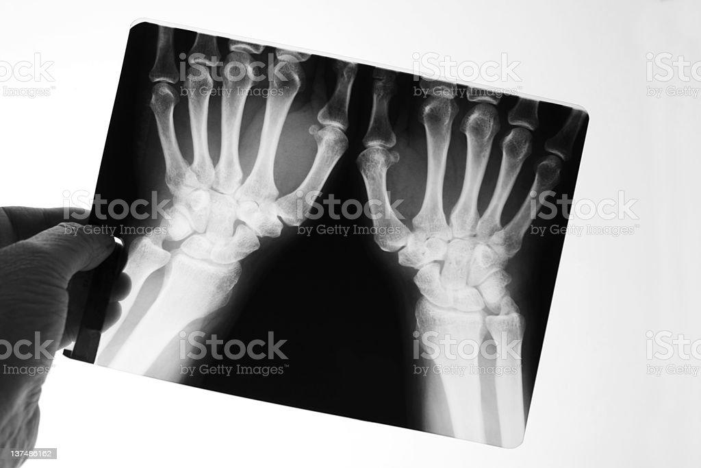 X-ray of human hand royalty-free stock photo