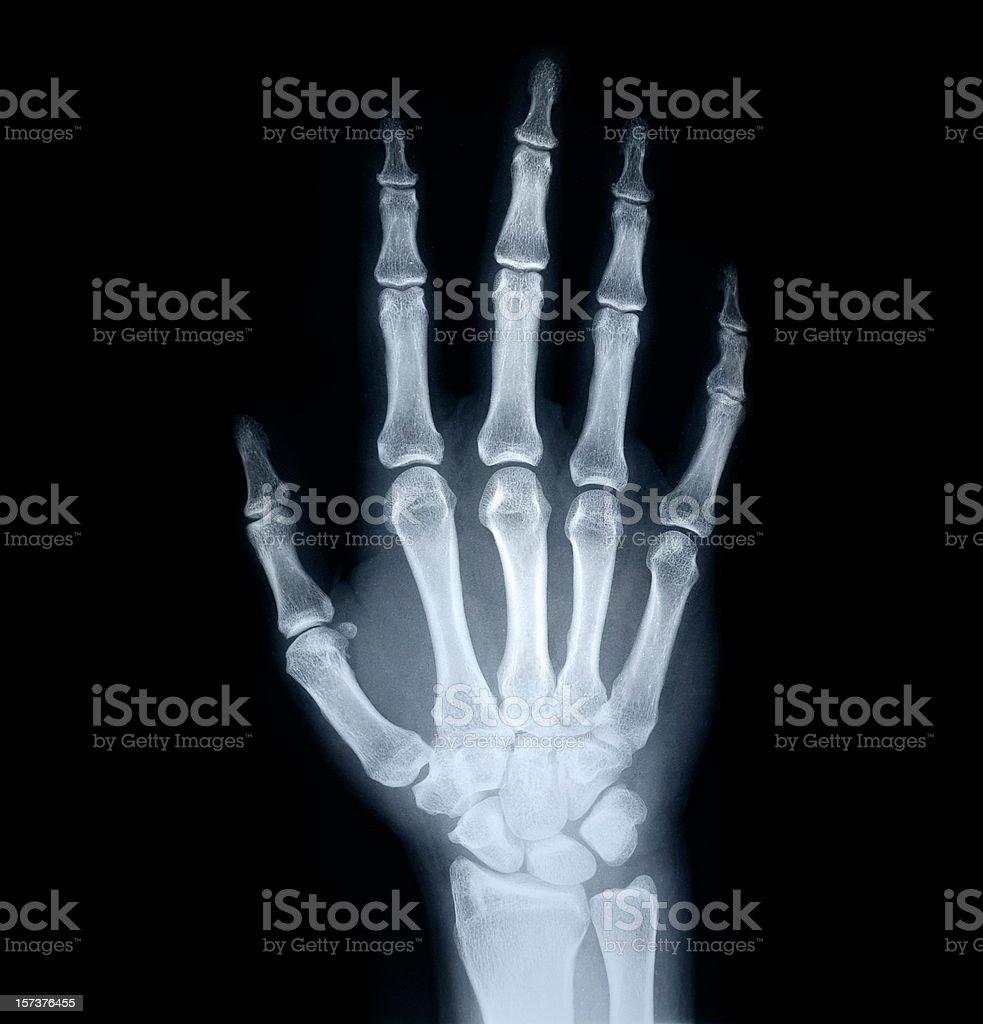 x-ray of human hand stock photo