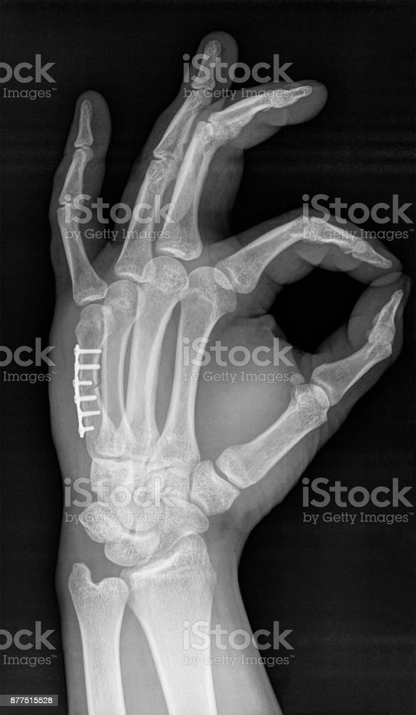 X-ray of human hand. V metacarpal bone with implant. stock photo