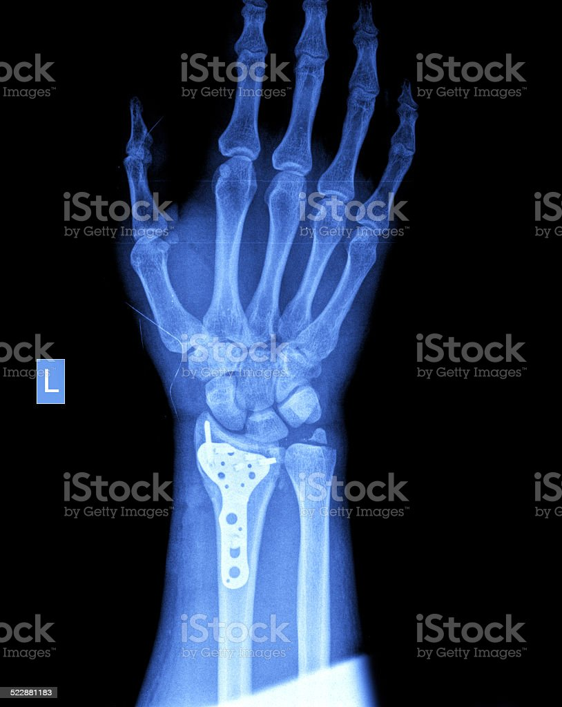 xray of human hand with screw stock photo