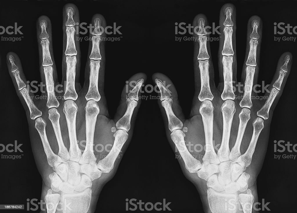 x-ray of human hands royalty-free stock photo
