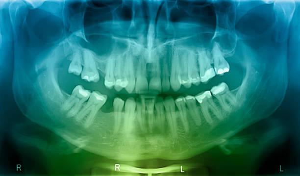 x-ray of human mouth - menselijke mond stockfoto's en -beelden