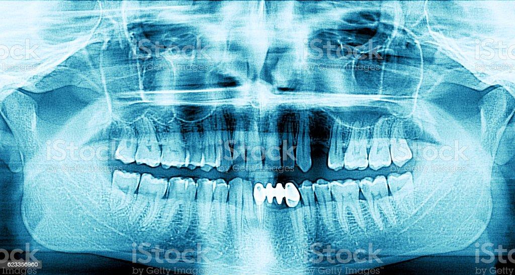X-ray de boca humana - foto de stock