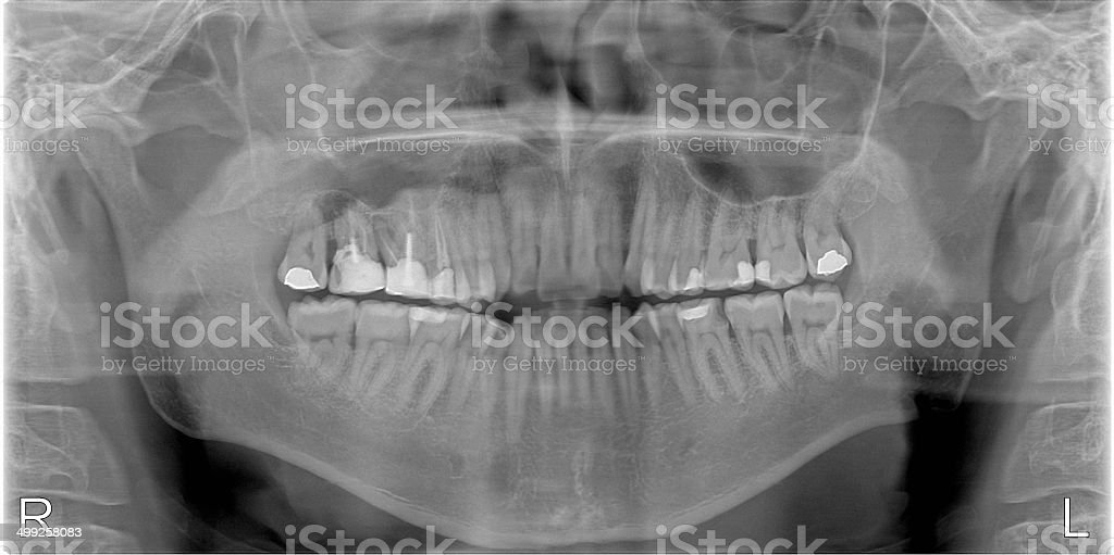 X-ray of Human Mouth with Fillings stock photo