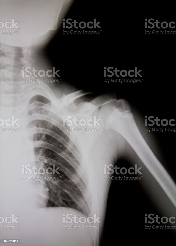 X-ray of human shoulder. stock photo