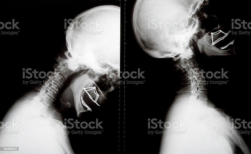 X-Ray of human skull royalty-free stock photo