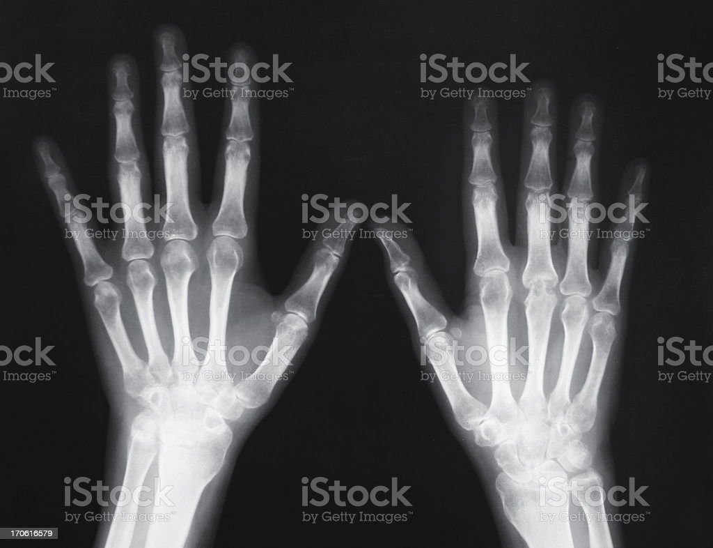 X-ray of human wrist with arthritis royalty-free stock photo