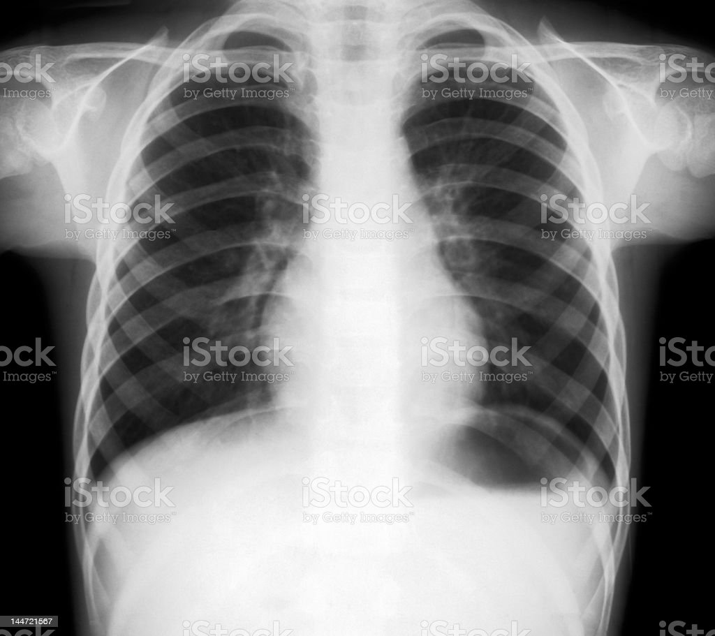 X-ray of lungs stock photo