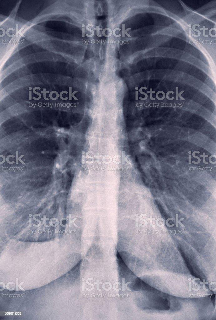 Röntgenbild Der Lunge Stock-Fotografie und mehr Bilder von ...