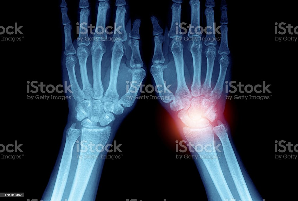X-ray of painful hand. stock photo