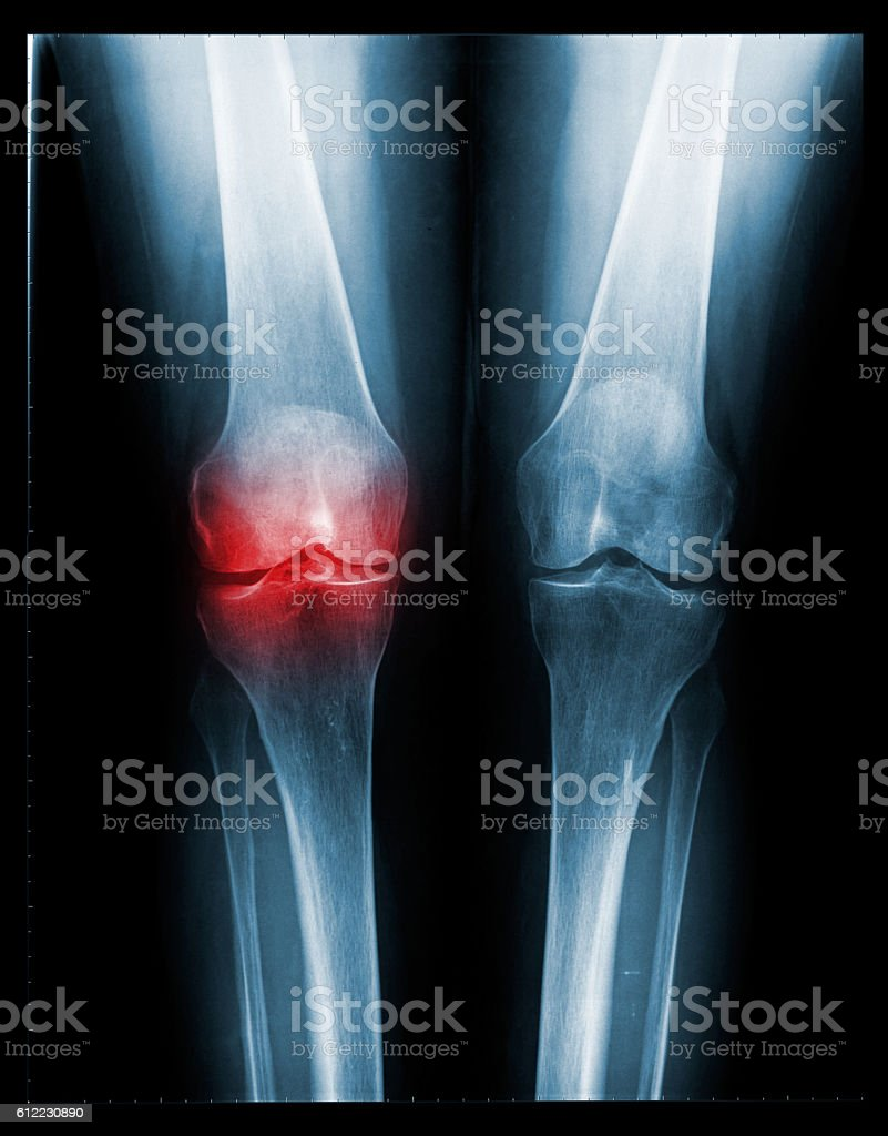 X-ray of painful knee - front view - foto de acervo