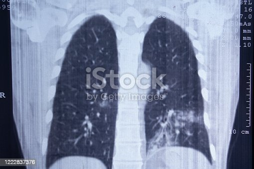 X-ray of pneumonia-affected lungs. CT scan