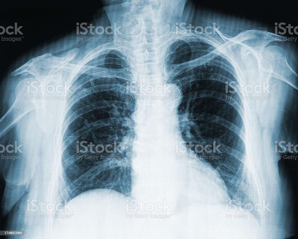 X-ray Of Ribcage royalty-free stock photo