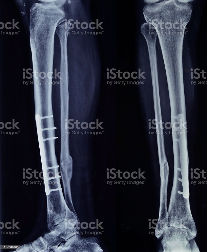 X-ray of the broken leg after surgery stock photo