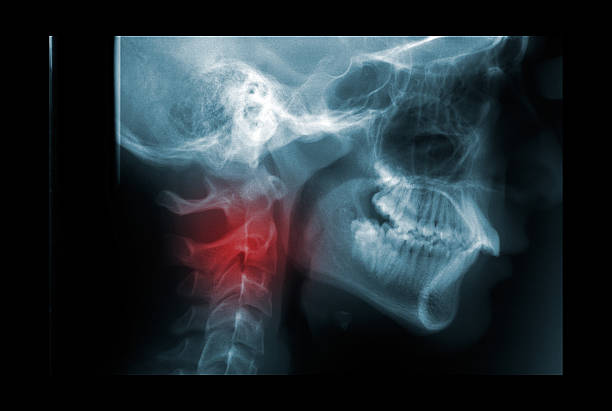 X-ray of the cervical spine painful area stock photo