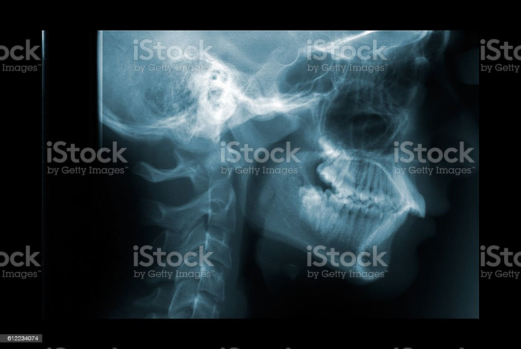 X-ray of the cervical spine stock photo