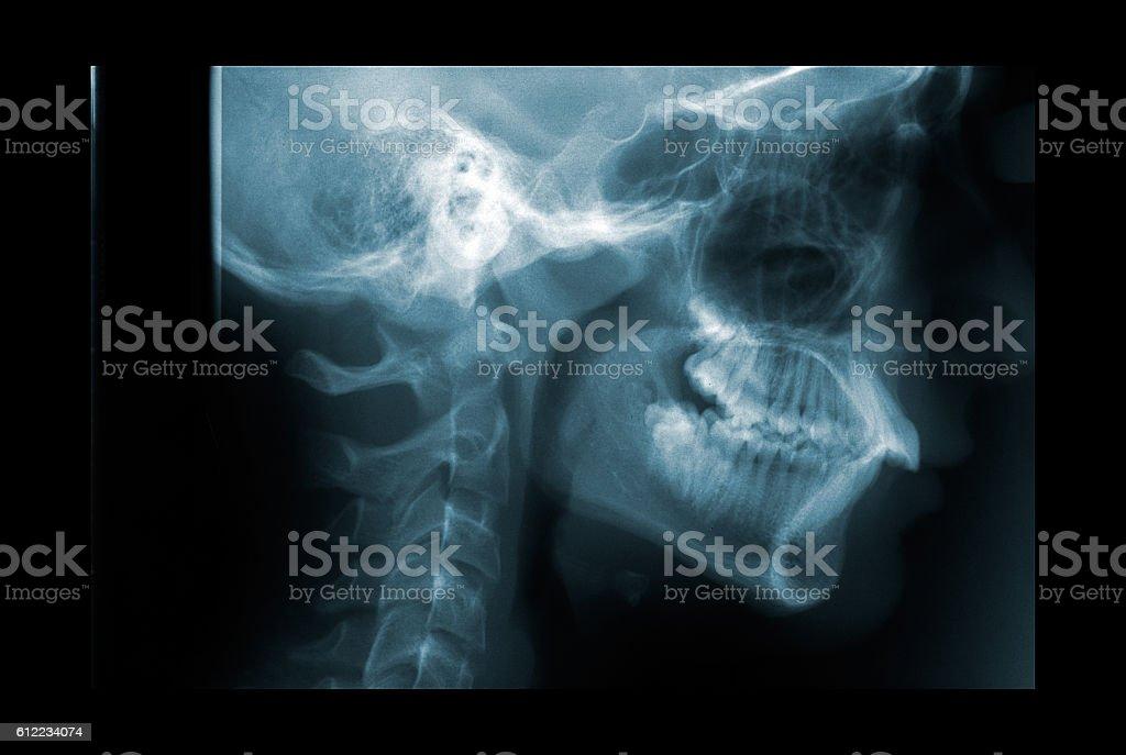 Raio-X da coluna cervical - foto de acervo